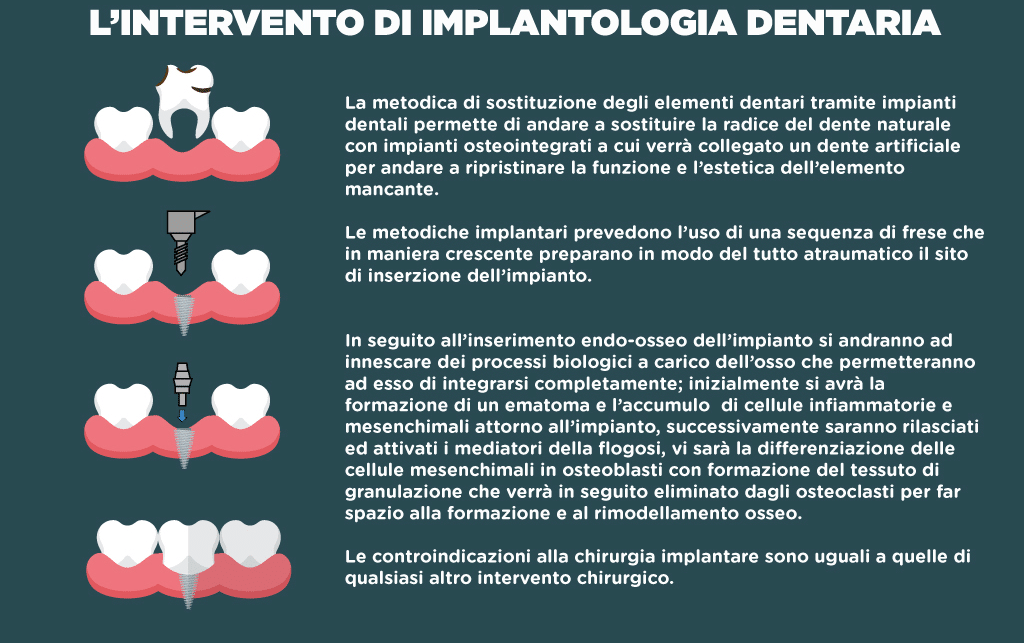 Impianti dentali: Come si esegue l'intervento